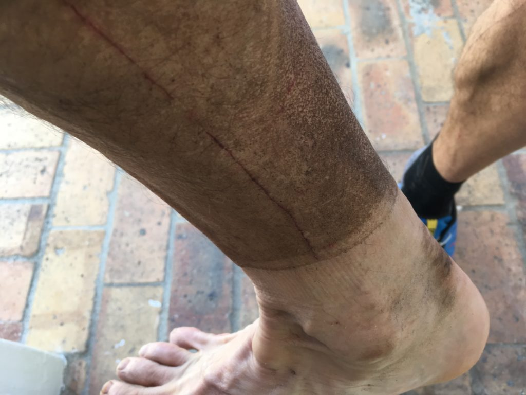 My legs after the 32 km trail run UTCT recce